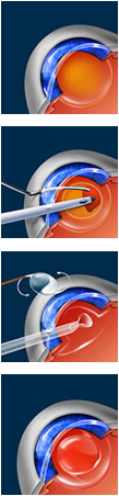 Diagram of cataract surgery