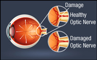 Diagram of glaucoma